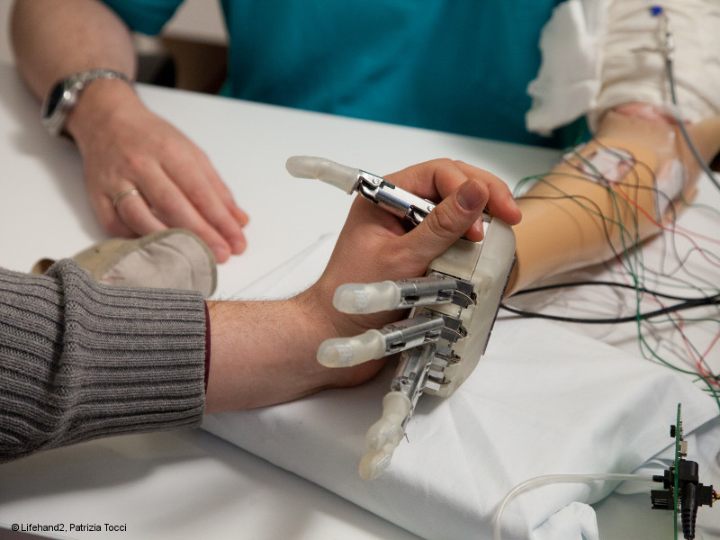 Photo: Human hand touches a bionic prosthetic hand