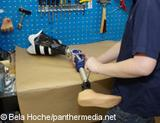 Photo: Prosthetic and orthotic services