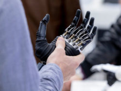 Photo: Man holding a hand prosthesis in his hand