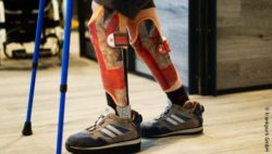 Photo: A child walking with orthoses in Union Jack design and crutches; Copyright: frankpurk GmbH