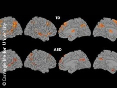 Graphic: pictures of brains with TD and with ASD
