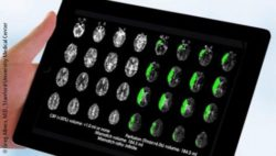 Photo: A brain scan shown on a tablet computer; Copyright: Greg Albers, M.D., Stanford University Medical Center