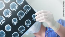 Photo: Physician checking MRI scans of a stroke patient; Copyright: PantherMedia/sudok1