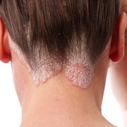 Photo: Psoriasis on head