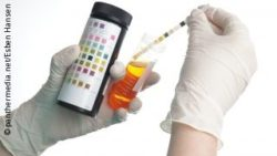Photo: Hands of a physician who is performing a urine test with a test strip; Copyright: panthermedia.net/Esben Hansen
