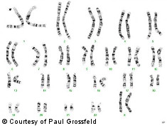 Photo: Chromosomes