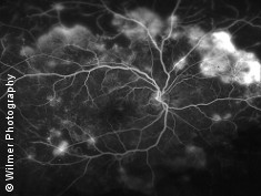 Photo: Blood vessels in the retina