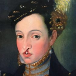 Photo: Overpainting of an old-masterly work showing a baroque woman with cleft lip and palate; Copyright: Katrin Bittl
