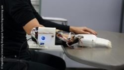 Photo: The prosthetic hand and socket; Copyright: Hiroshima University Biological Systems Engineering Lab