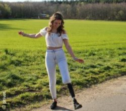 Photo: young brunette woman - Gianna - stretching up one leg with a prosthesis; Copyright: privat