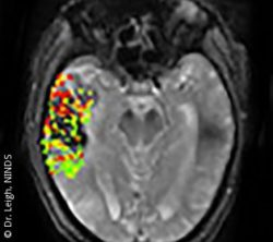 Photo: scan of a brain; Copyright: Dr. Leigh, NINDS