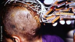 Photo: Patient with implanted electrodes on his head; Copyright: Gregor Gast/UKB