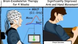 Image: The improved arm and hand movements after the BMI-stroke Rehab; Copyright: University of Houston