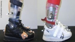 Photo: Splints adapted to the footwear of two children; Copyright: Staffordshire University