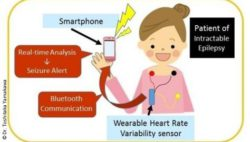 Graphic: Representation of the wearable epileptic seizure prediction device; Copyright: Dr. Toshitaka Yamakawa