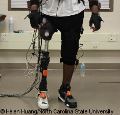 Photo: Powered prosthetic device