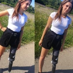Photo: two images of a brunette young woman with prosthetic leg - Gianna; Copyright: privat