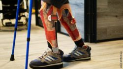 Photo: Child walking with orthoses in Union Jack design and crutches; Copyright: frankpurk GmbH