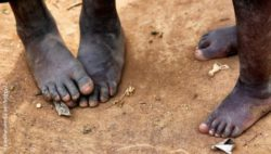 Photo:  bare feet of two african kids; Copyright: panthermedia.net/boggy22